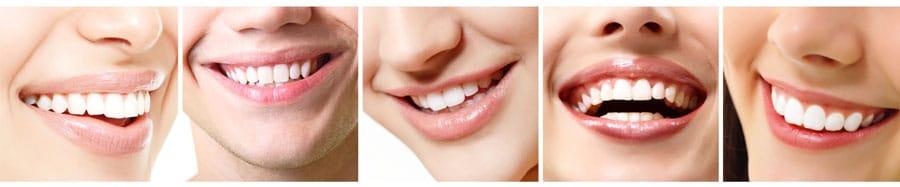 Il tuo dentista di fiducia a Thiene Vicenza