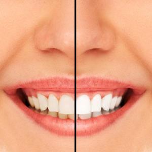 odontoiatria estetica di sbiancamento dentale a Thiene Vicenza