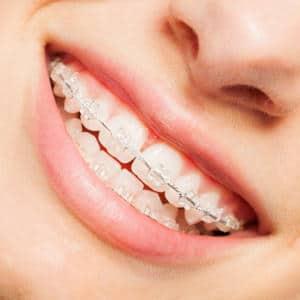 Studio Dentistico Srl servizi di odontoiatria estetica a Thiene Vicenza